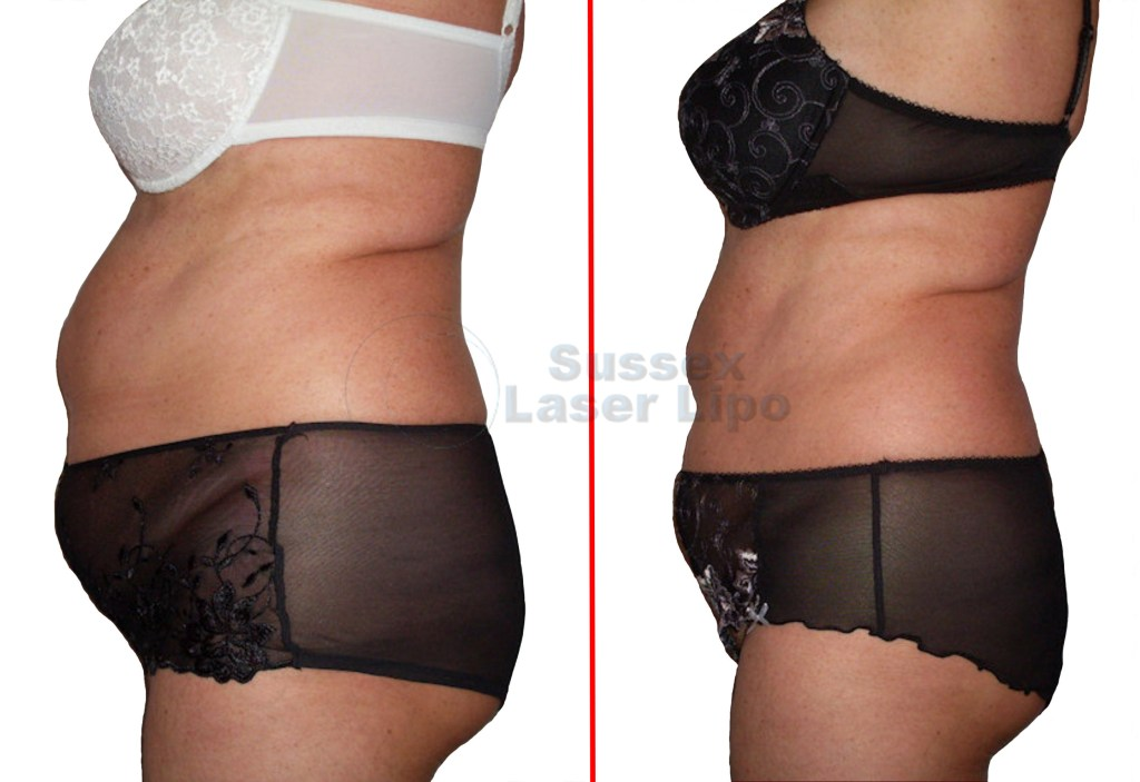 accelerated-laser-lipo-inch-loss-before-and-after-1