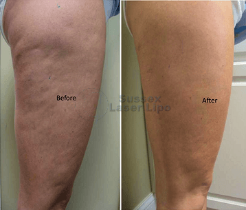 ultimate-cellulite-before-and-after-1