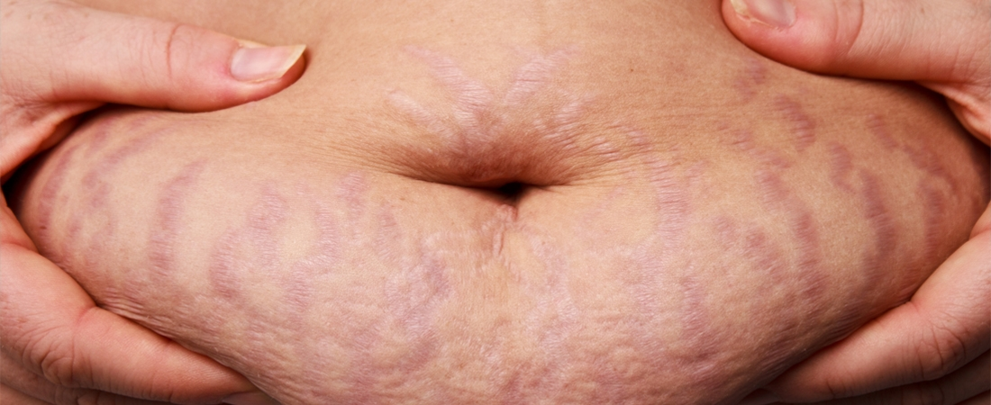 stretch mark reduction treatment to get rid of stretch marks