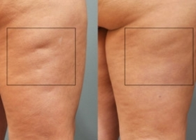 Sussex-Laser-LIpo-Ultimate-Cellulite