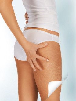 PureShape-Body-Sculpting-Skin Tightening-Sussex-Laser-Lipo