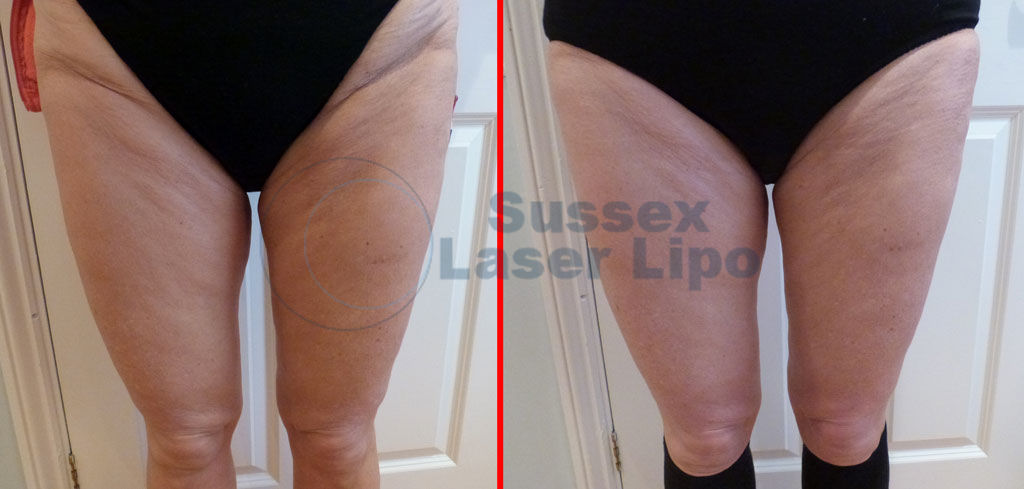Ultimate-Cellulite-results-1
