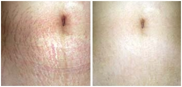 Stretch-Mark-Reduction-Sussex-Laser-Lipo (2)