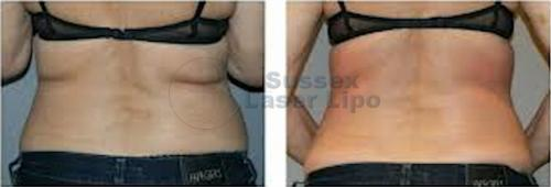 CryoGen Fat Freezing Inch Loss Results 7