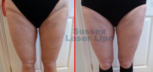 Ultimate Cellulite results 1