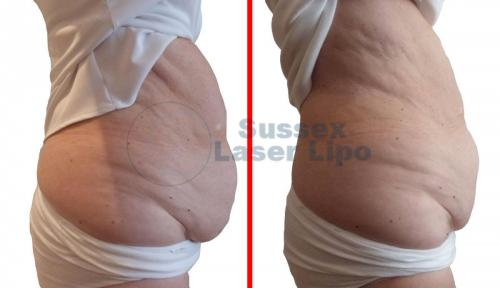 CryoGen Fat Freezing Inch Loss Results 1