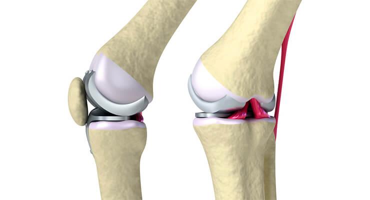 Замена коленного сустава: подготовка и ход операции. Операция по замене коленного сустава не ограничивает движения
