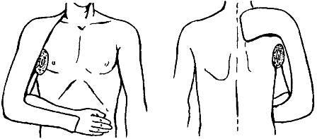 a bokaízület 1. fokozatának ízületi gyulladása ízületi kezelés kenőcs