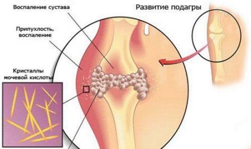inflamația medicamentoasă a articulației degetului mare)
