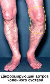se bazează sub genunchi din varicoză care este numele tratamentului cu laser a varicozei