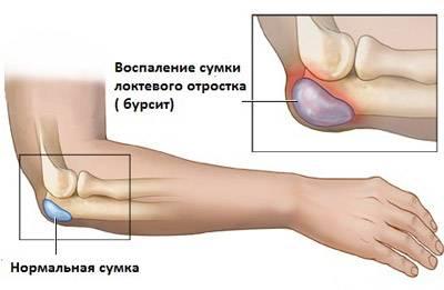 Артроз коленного сустава симптомы и лечение лфк
