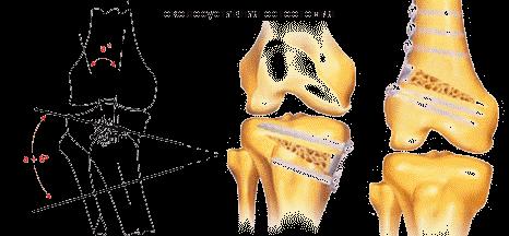 kiütés ízületi fájdalommal kenőcs ízületi gyulladás és ízületi gyulladás esetén