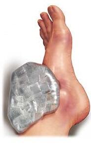 Как восстановить колено и связки после травмы реабилитация после разрыва