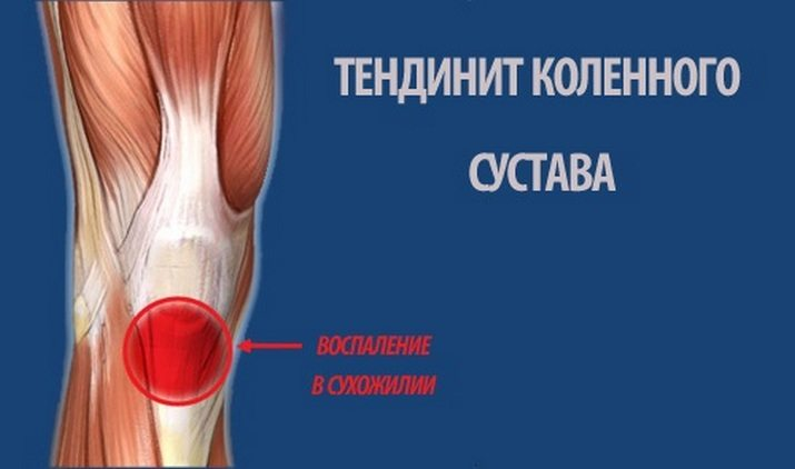 Pain in the knee joint with osteoporosis