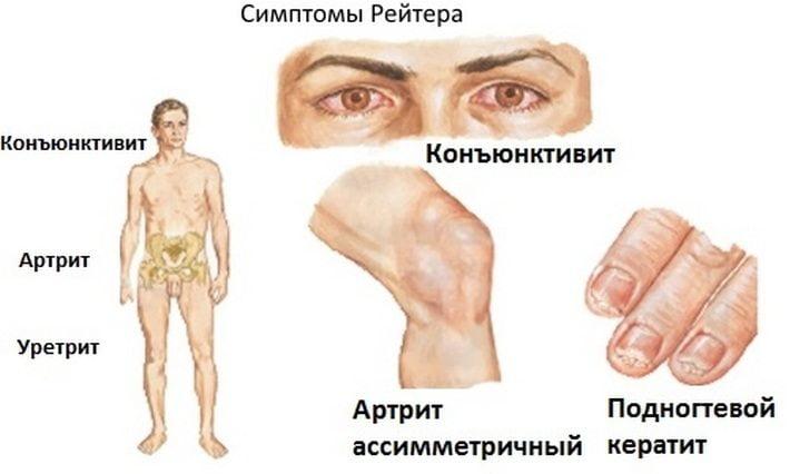 Болезнь Рейтера: виды, симптоматика, диагностика, лечение. Болезнь Рейтера (синдром): симптомы (проявления), лечение мужчин и женщин