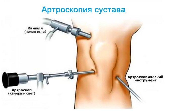 de ce întregul corp doare mușchii și articulațiile)