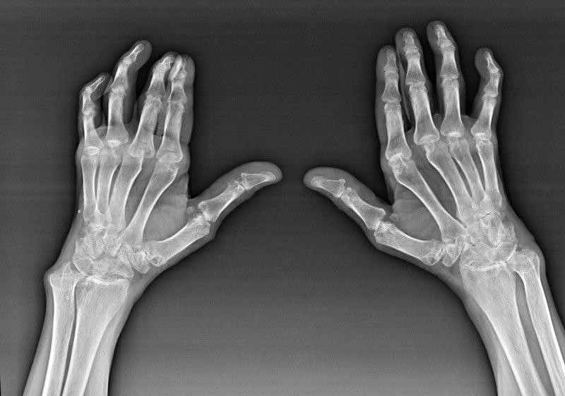 Утренняя скованность в суставах коленных и пальцев рук лечение симптомы причины профилактика