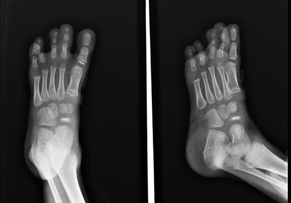 a bokaízület osteochondroze