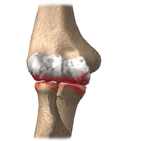 gonarthrosis betegség a térdízület 2 fokos térdfájdalom kiterjesztéses kezelés során