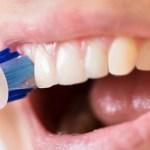 歯茎を傷めてしまったら、すぐになんとかしないと大変なことに、、、。
