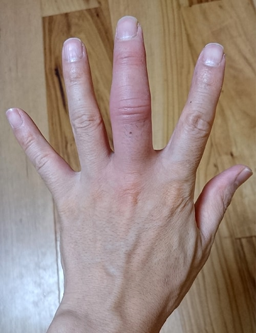 包帯の外れた日のパーの手