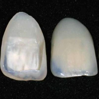 estetinės dantų laminatės