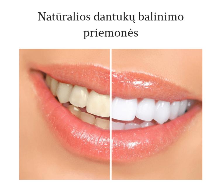 Natūralios dantukų balinimo priemonės