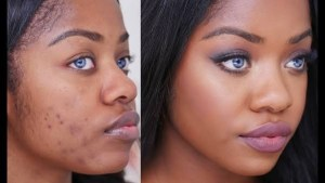 5 Natural Remedies For Your Dark Spots