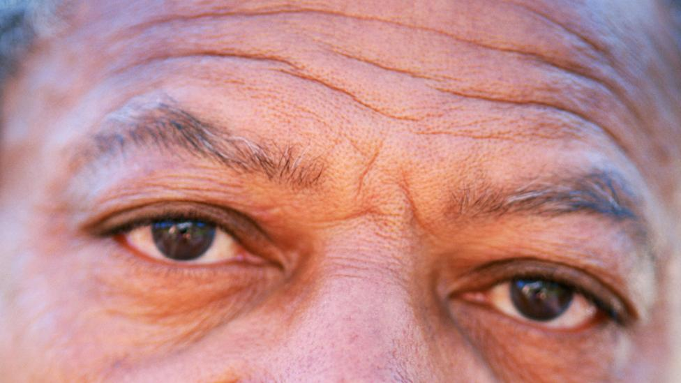 ageing african man's face - Beauty Benefits of Aloe Vera