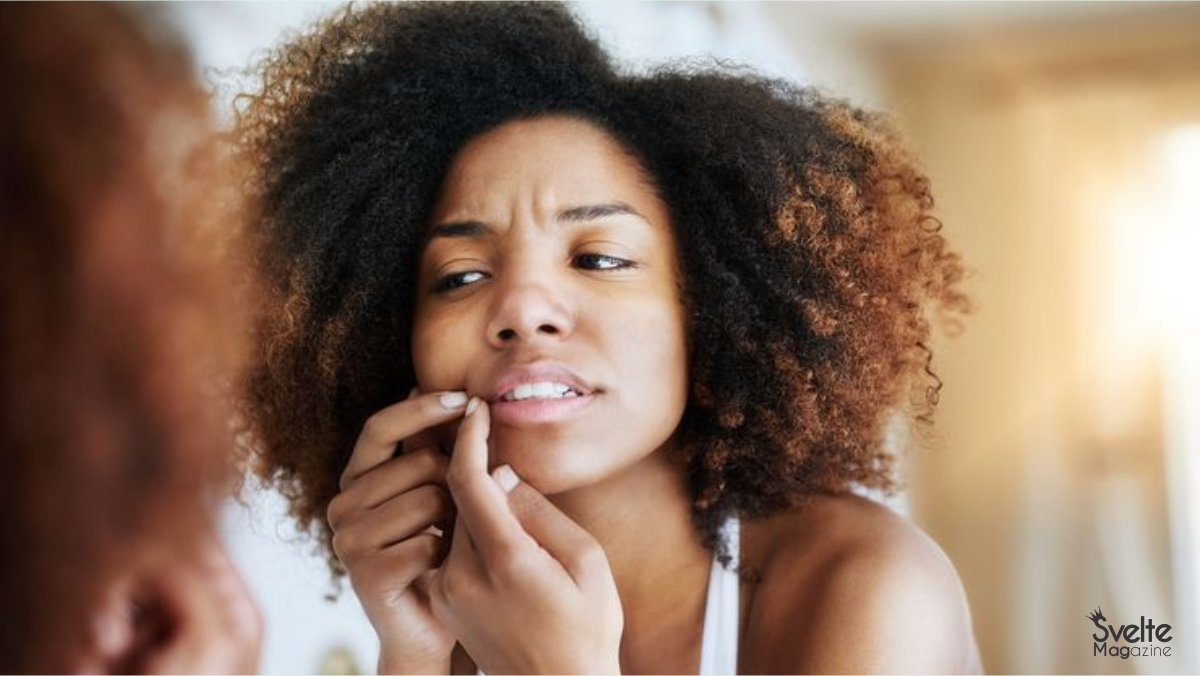 5 Natural Remedies to Get Rid of Acne Scars