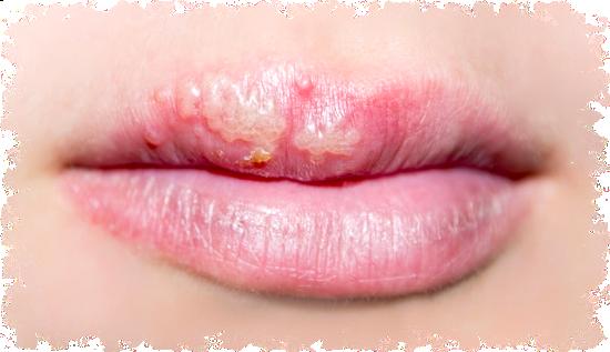 Herpes Labiale Rimedi e Prevenzione