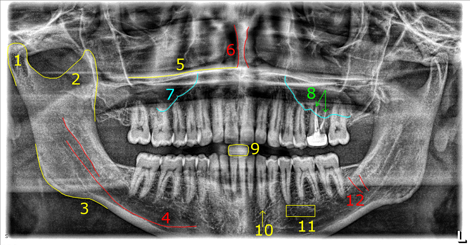 Smile Fun Things To Look For In Your Dental X Rays