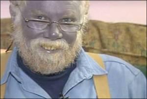 Papa Smurf: Argyria