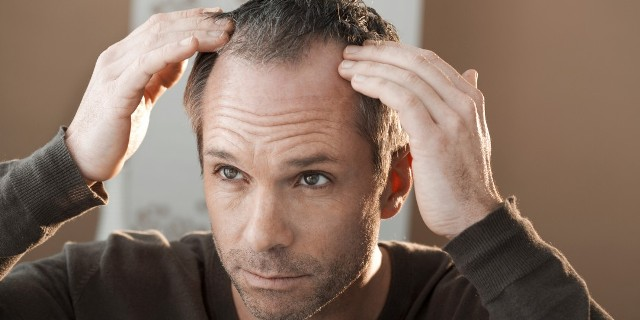 best hair loss treatments for men