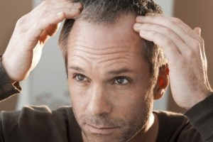 Best Hair Loss Treatments For Men – That Actually Work!