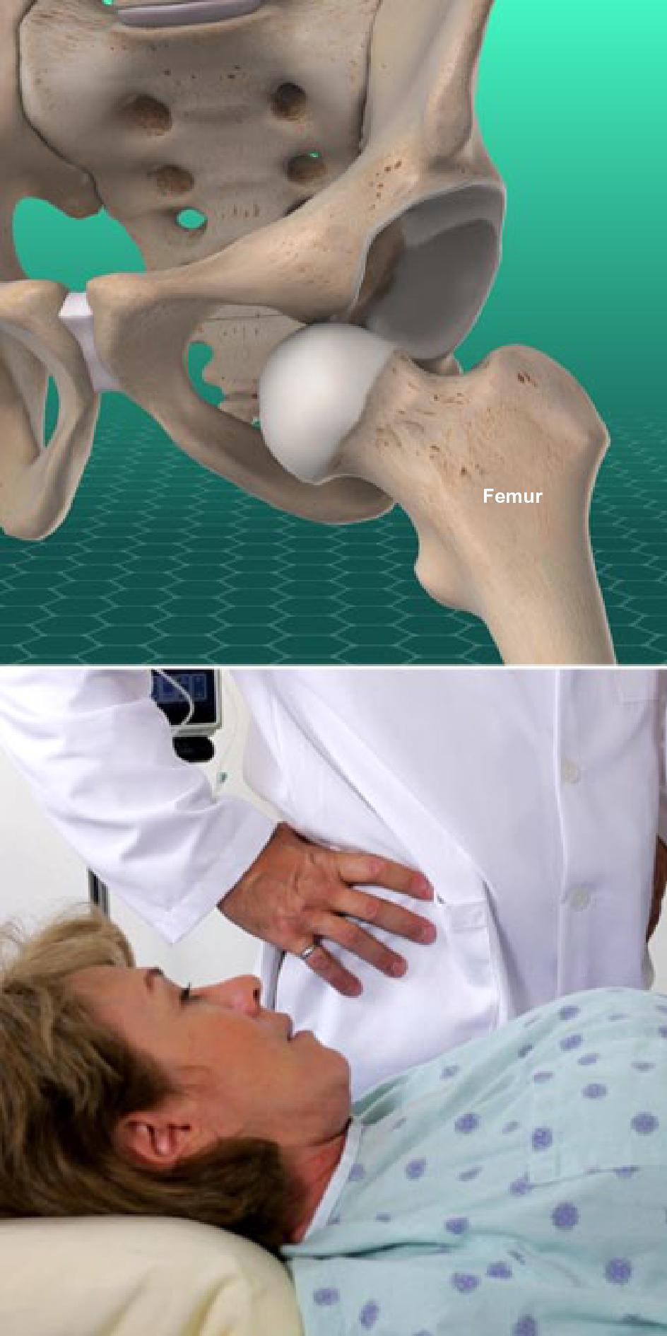 Hip Dislocation - Orthopaedic Associates of Riverside