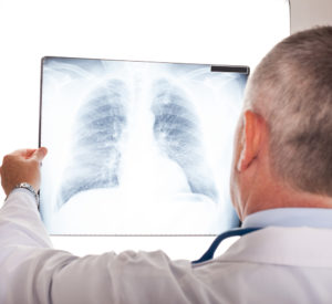 Chest X-Ray in Dallas Texas