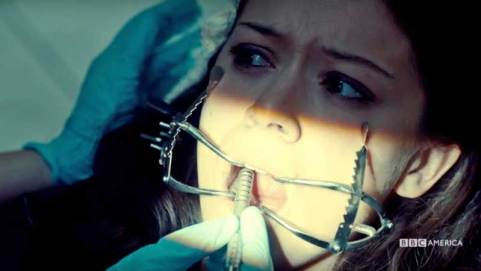 orphan-black-season-4-episode-3-stigmata-of-progress-sarah-cheek