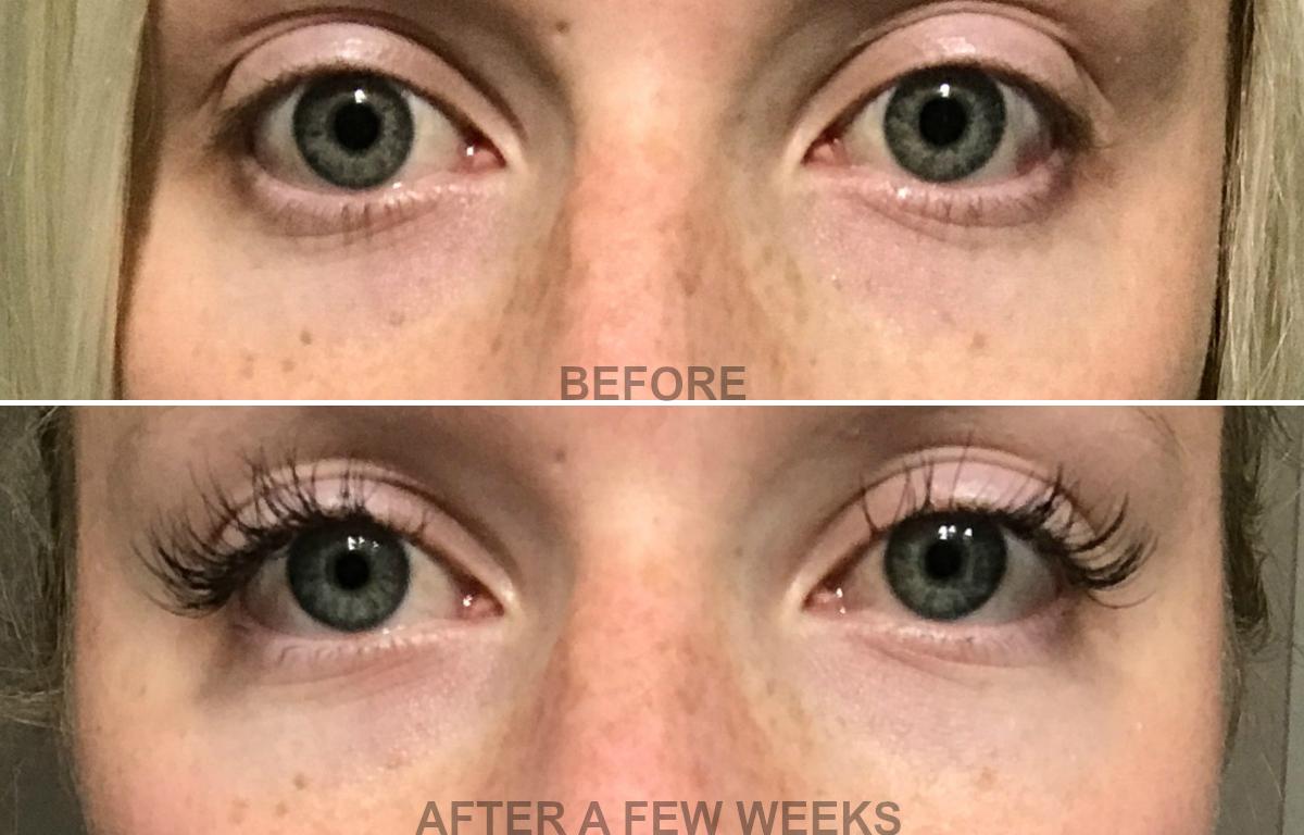 viicode t2 oxygen eye cream results - sweet teal