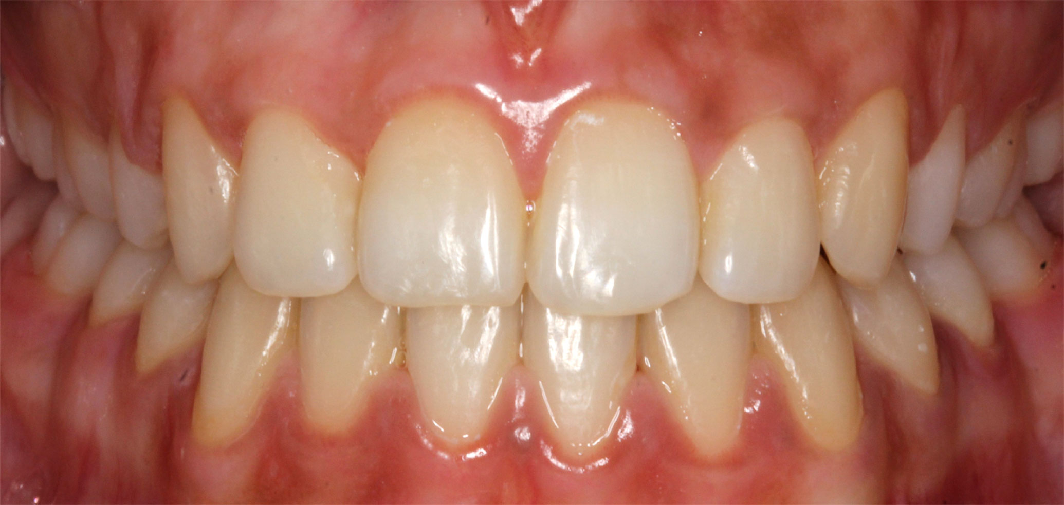 Before and After Gallery  Swift Orthodontics