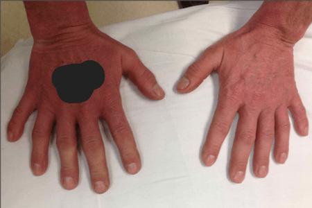 完全に機能する珍しい6本指の写真がネットで公開される
