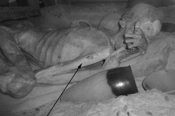 世界最古のタトゥーが古代エジプト人のミイラに描かれていたことが判明