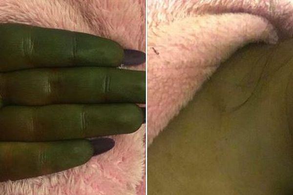 日焼け用クリームを使った女性、肌がシュレックのような緑色に変色