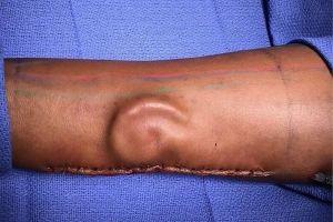 左耳を失った女性兵士のため、本人の腕の中で耳を育てることに成功
