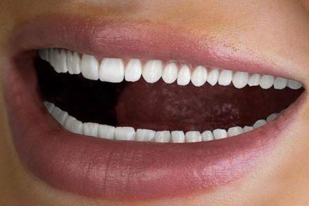 デンタル企業が60本並んだ歯の写真を投稿、困惑するコメントが寄せられる