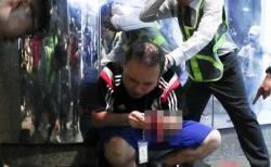 香港で男が刃物を使いデモ参加者を襲撃、民主派議員の耳を噛み切る