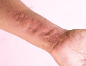 Sweat rash on hand