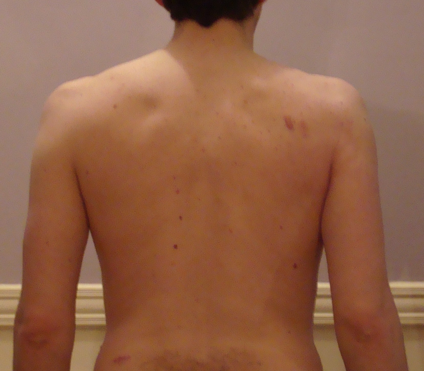 Before P90x Picture Back View