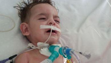 صورة سوري يناشد الحكومة التركية ل أنقاذ حياة طفله المريض.
