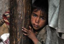 """صورة """"شلل الأطفال"""" يتفشى في اليمن والسودان"""